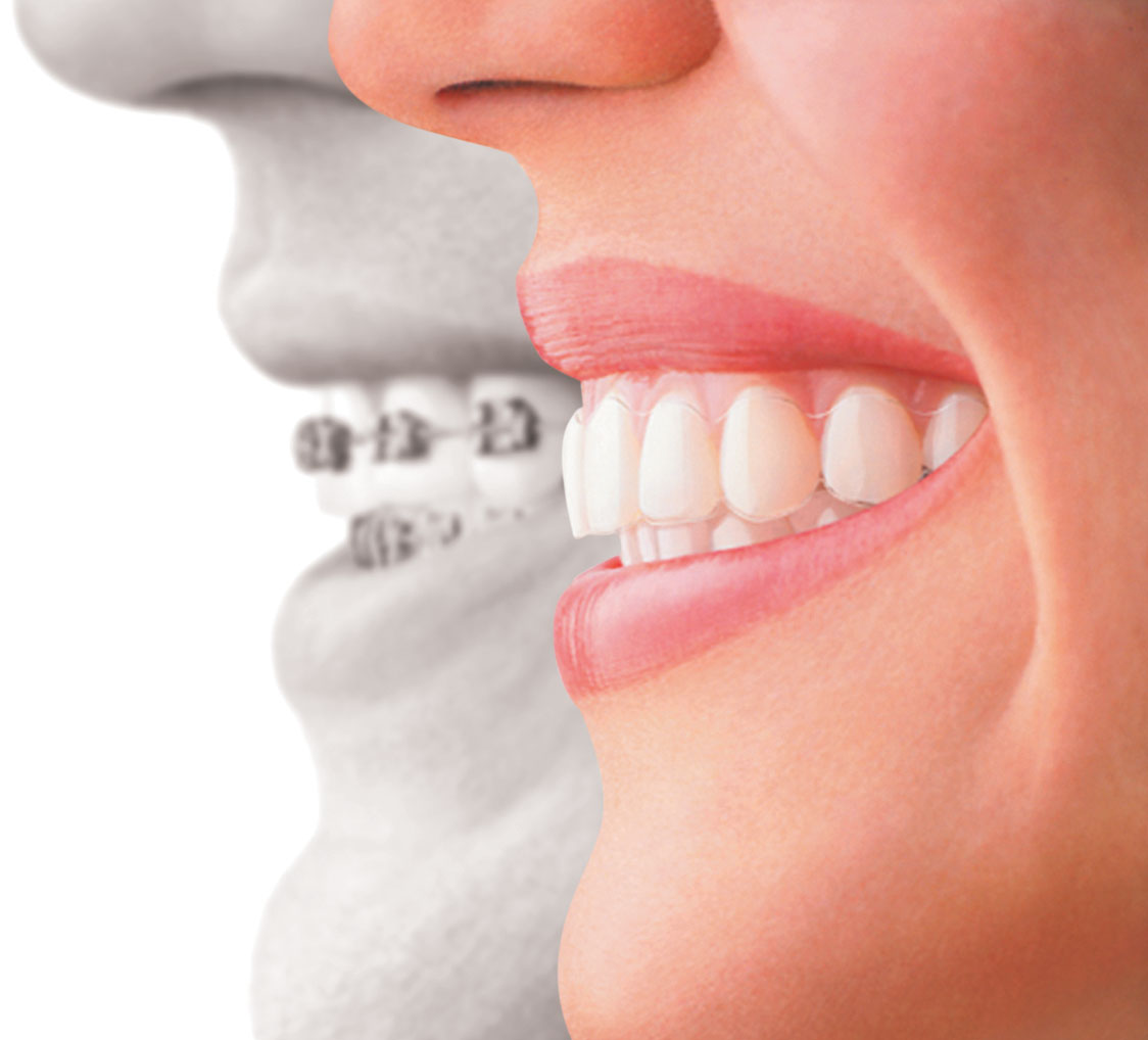 invisalign - orthodontics